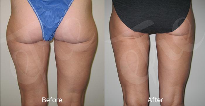 Laser Liposuction New Orleans Minimally Invasive Fat