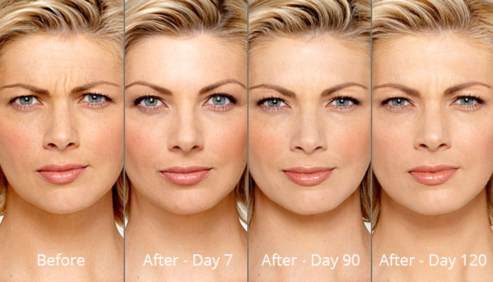 Botox In New Orleans Cost Of Botox Etre Cosmetic