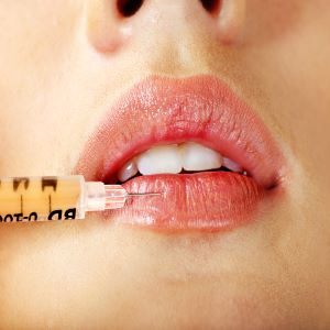 Why a lip augmentation can really make the face
